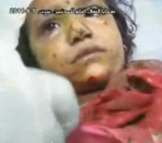 Injured child in hospital (from video below)